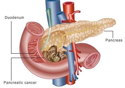 Research Points to New Treatment for Pancreatic Cancer