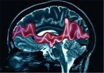 Type 1 Diabetes Linked to Epilepsy Risk, Study Suggests